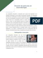 Clasificación de películas en estomatología