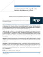 osteitis condensante caso clínico.pdf