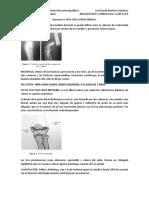 resumen 9 fractura supracondilia