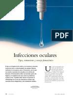 Infecciones oculare