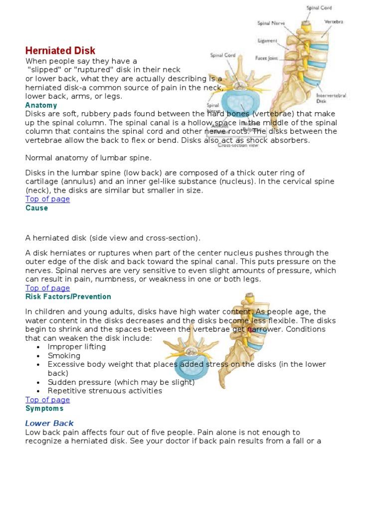 disc herniation | Vertebral Column | Back Pain