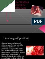 Hemorragia Dr. Rosendo