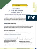 ARTICULO (FRACTURA CORONORADICULAR) ESPAÑOL.pdf