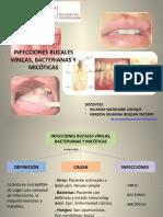 Infecciones bucales víricas, bacterianas y micóticas.