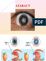 cataract.pptx