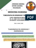 TOMOGRAFIA EN URGENCIAS Y EMERGENCIAS