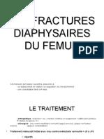 fracture diaphyse de femur