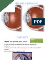 153994323-PATOLOGIA-DEL-CRISTALINO-CATARATA