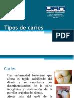 caries-120506131100-phpapp01.pdf