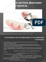 Klammernaya Sistema Fiksatsii Byugelnyh Protezov