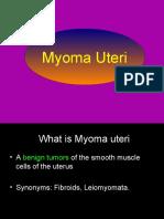 myomauteri-091130200817-phpapp01