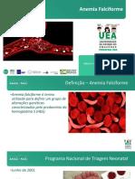 Anemia falciforme - CLUBE DA CRIANÇA.pdf