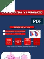 ESTENOSIS MITRAL - DANIELA
