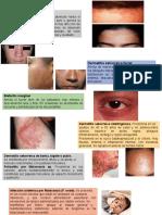 dermatitis seborreica 3.pptx