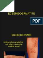 Curs Eczeme - Dermatite
