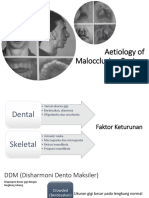 Aetiology of Malocclusion Review