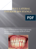 Incisivul lateral inferior din stanga