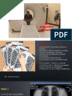 Aprende a leer Radiografía