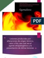quemaduras-170406234701