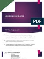 6 Estenosis pulmonar.pptx
