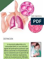 NEUMONIA.pptx