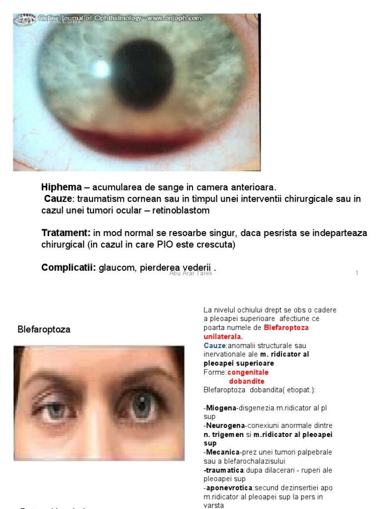 refacerea vederii după îndepărtarea tumorii)