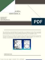 AMBLIOPIA HISTERICA