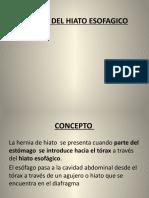 HERNIA DEL HIATO ESOFAGICO 2020