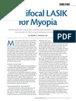 Multifocal LASIK for Myopia