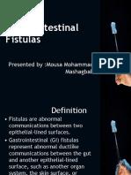 Gastrointestinal Fistulas - Mousa  Mashagbah