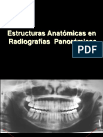 Estructuras Anatómicas en Rx Panorámicas