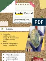 Clase Caries Dental