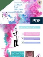 CASO CLINICO DE CANDIDIASIS SEMIO 1.pptx