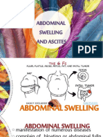 ABDOMINAL-SWELIING-AND-ASCITES