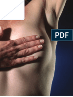 Bilateral Total Modified Radical Mastectomy and Reconstruction