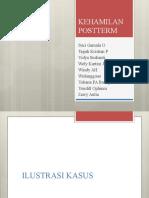 Postterm Pregnancy - case presentation