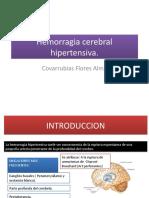 Hemorragia cerebral hipertensiva.pptx