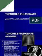 CURS TUMORI PULMONARE