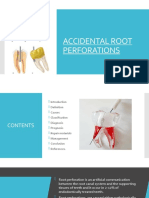 Accidental root perforations