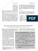 aroxysmal Atrial Tachycardia with Atrioventricular Block