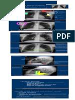 9 - Radiologia de torax (1)
