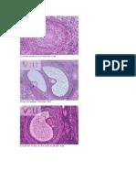 A Cross Section of a Human Ovar