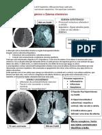 LESÕES EXPANSIVAS DO SNC - transcrição.pdf