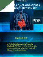 MALATTIA INFIAMMATORIA CRONICA INTESTINALE-1