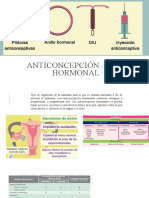 Anticoncepcion hormonal