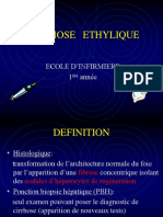 CIRRHOSE-ETHYLIQUE