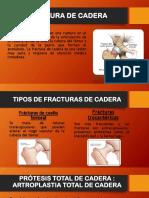 FRACTURA DE CADERA sin caratula.pdf