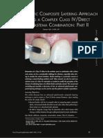 class IV restorations polychromatic