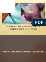 Venipuncture using butterfly winged set & heel prick
