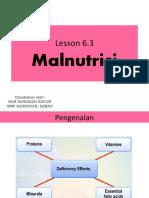 2. Malnutrisi